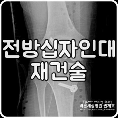 전방십자인대파열 무릎 관절경을 통한 재건 방법 서울 바른세상병원