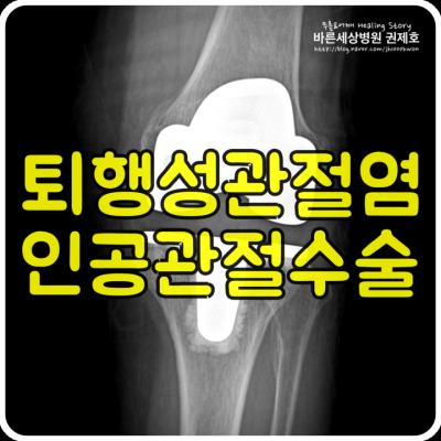 무릎 인공관절 수술한 후 무릎 인공관절 주위 골절 수술한 사례