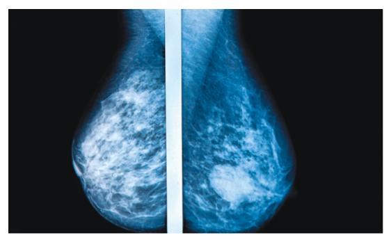 동양여성과 서양여성의 유방암 차이