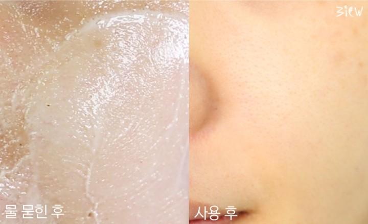 아이프롬-얼굴-전후.jpg