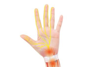 증상별 '손목 통증'으로 알아보는 의심 질환 4